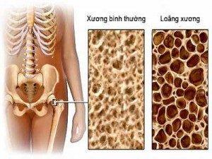 loang-xuong-himalaya